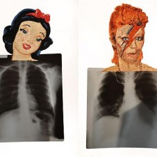 X-Ray Heartthrobs
